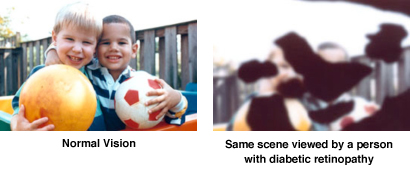 Normal Vision vs Diabetic retinopathy