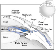 Glaucoma - Fluid diagram