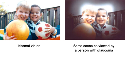 Normal Vision vs Glaucoma